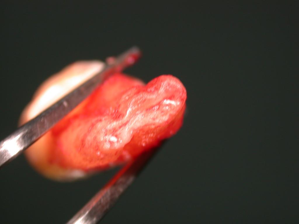 Denti del giudizio quali i possibili effetti a distanza for Dolore addome sinistro alto