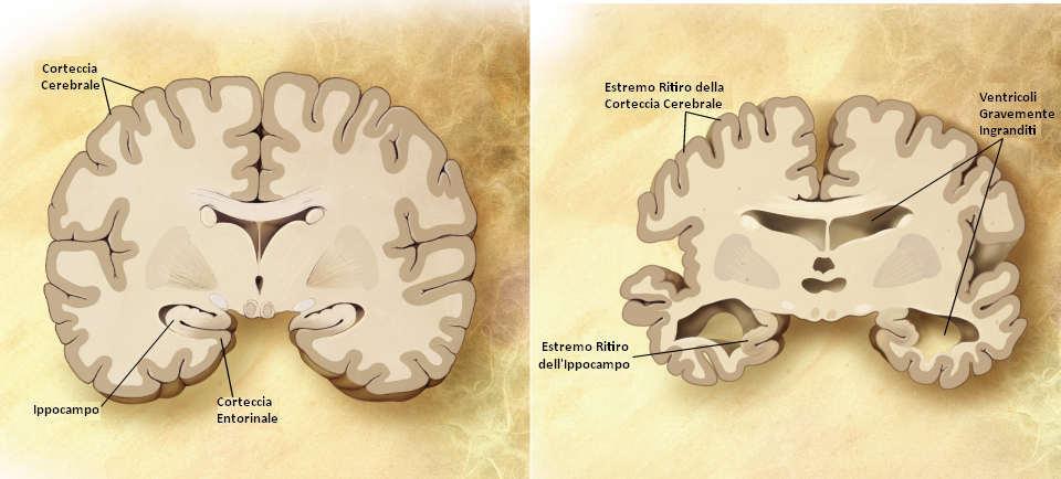 confronto cervello alzheimer